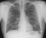 Dealing With Bruised Lung…