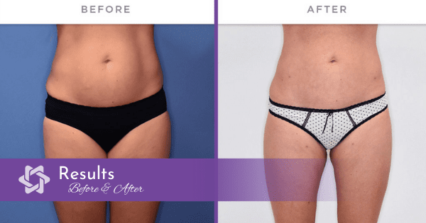 What to Look for in Before and After Photos