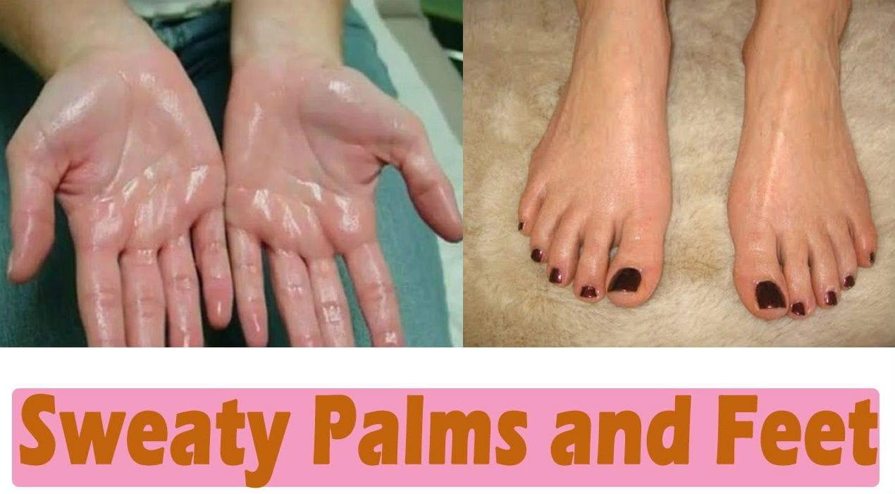 sweaty hands feet