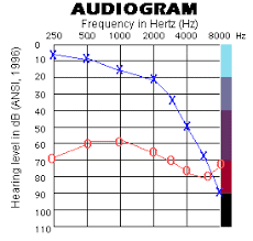 high frequency audiogram