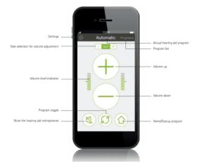 Phonak hearing aid app