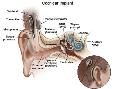 The Bionic Ear Or Cochlear Implant