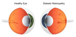 Illustration showing healthy eye and eye effected by diabetic retinopathy