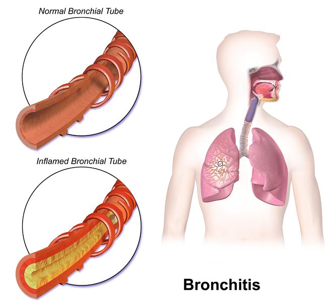 Bronchitiss