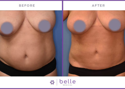 Belle_Medical-Before_After-Body_Sculpting-10-1024x640