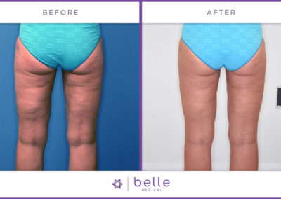 Belle_Medical-Before_After-Body_Sculpting-3-1024x640