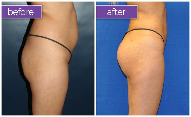 Fat-transfer-buttocks-3-BeforeandAfter