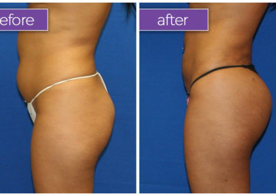 Fat-transfer-buttocks-5-BeforeandAfter
