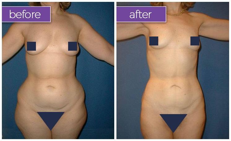 abdomen-hips-female-4-body-sculpting-belle-medical