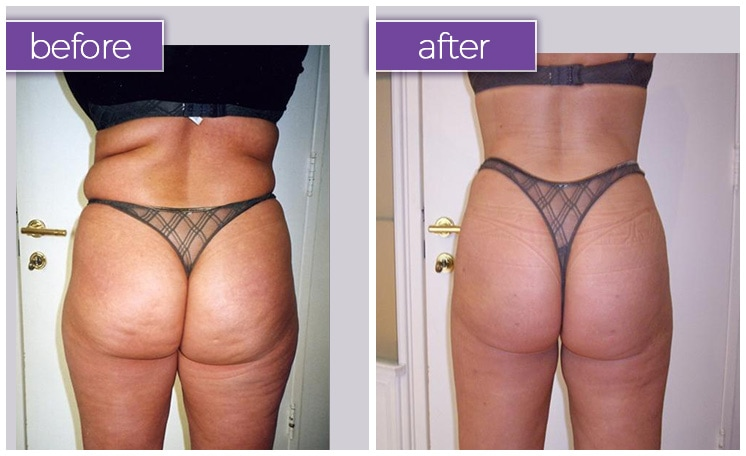 back-buttocks-female-10-body-sculpting-belle-medical