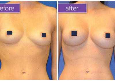 fat-transfer-breasts-3-BeforeandAfter-1