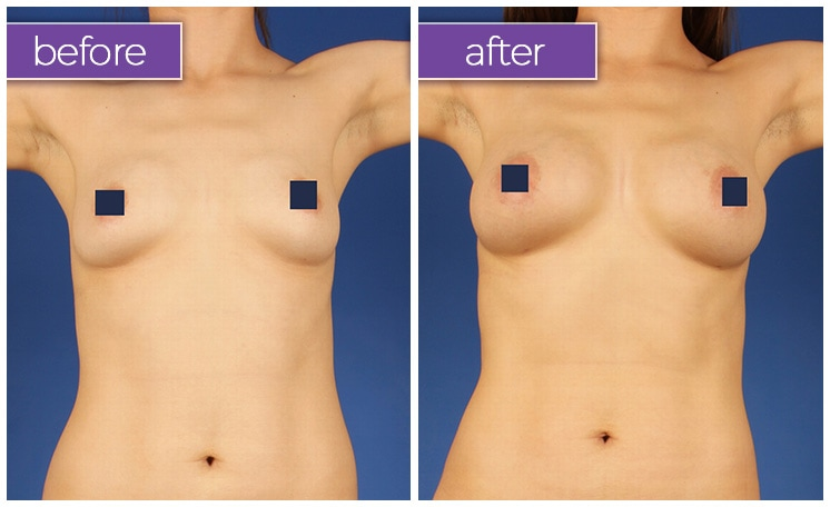 fat-transfer-breasts-4-BeforeandAfter