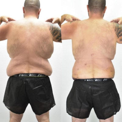 influencer-wayne-hd-body-sculpting-before-and-after