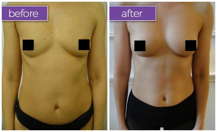 fat-transfer-breasts-1-BeforeandAfter-box