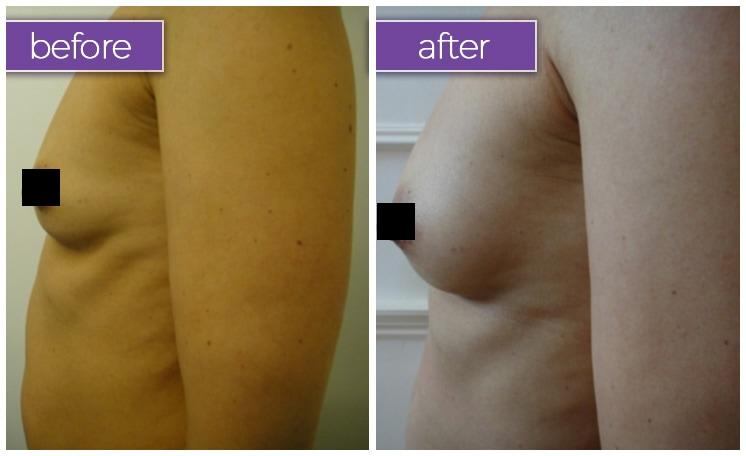 fat-transfer-breasts-3-BeforeandAfter-box