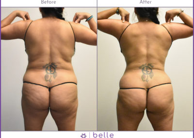 BM-WOC-Back-Before-After