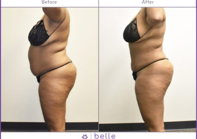 BM-WOC-Mom-Pooch-3-Before-After