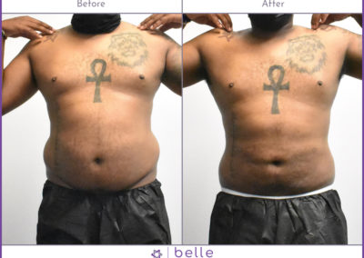 202108-male-stomach-before-after
