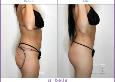 BM-BBL-Before-After