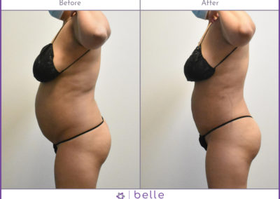 Woman-Stomach-v2-Before-After