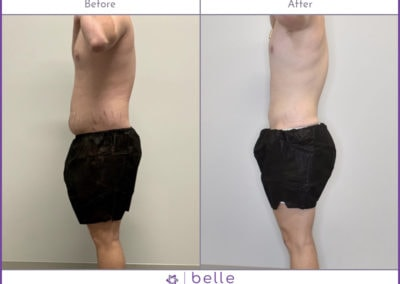 Young-Male-Stomach-BM-Before-After-v2