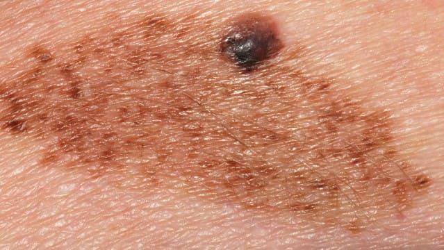 Melanoma nevus
