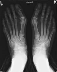 Hallux Valgus Röntgenbild