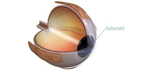 Katarakt (Grauer Star) Erklärung, Ursachen, Operation Augen