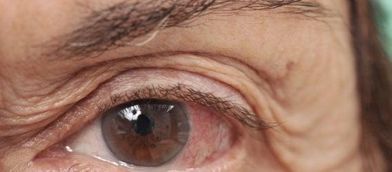Lidhauterschlaffung, Blepharoplastik, Dermatochalasis