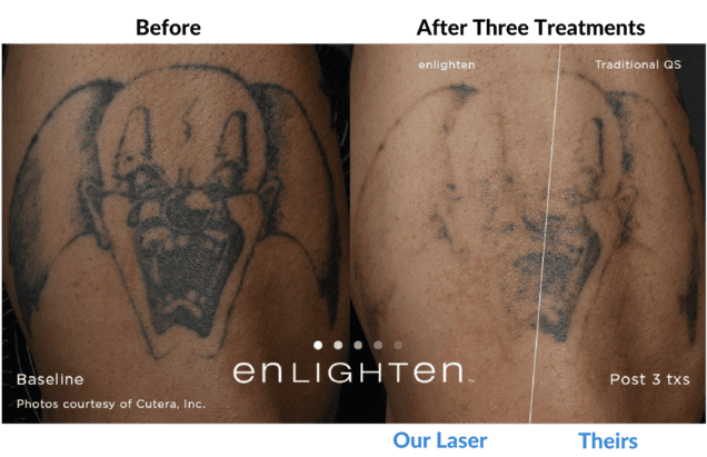 Our Laser vs Theirs