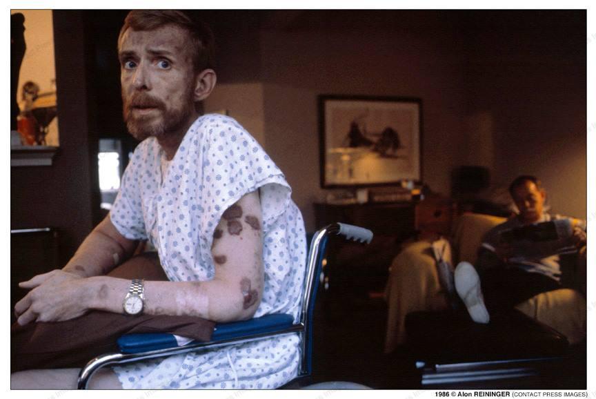 Epidemia di HIV AIDS Foto di Alon Reininger 1985