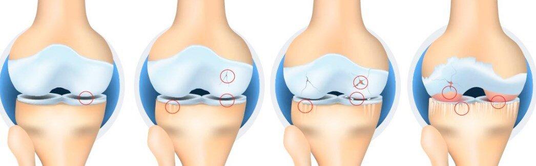 osteoartrit ve dejeneratif eklem hastaligi