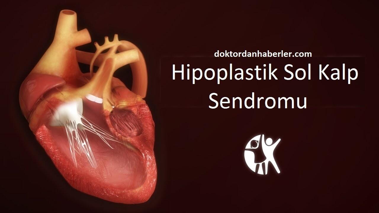 hipoplastik sol kalp sendromu