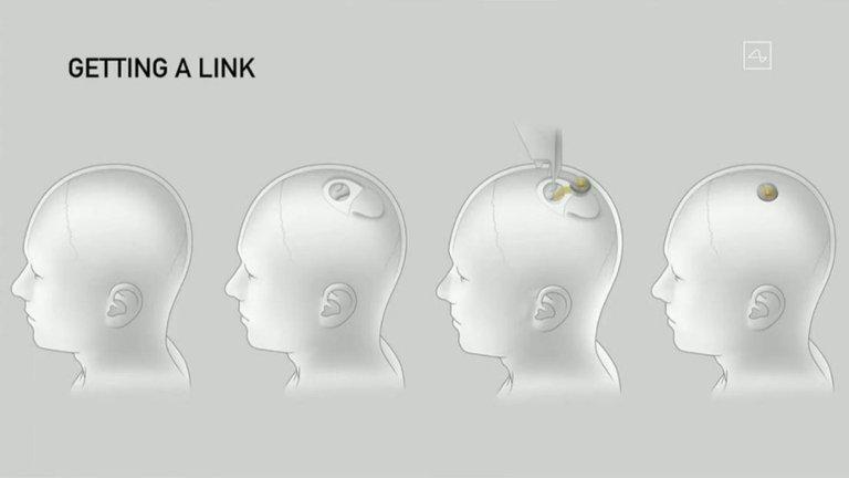 chic en cerebro