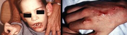 lesch nyhan sendromu nedenleri