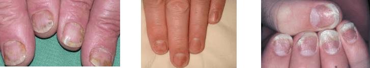 tirnak psoriasis tedavisi