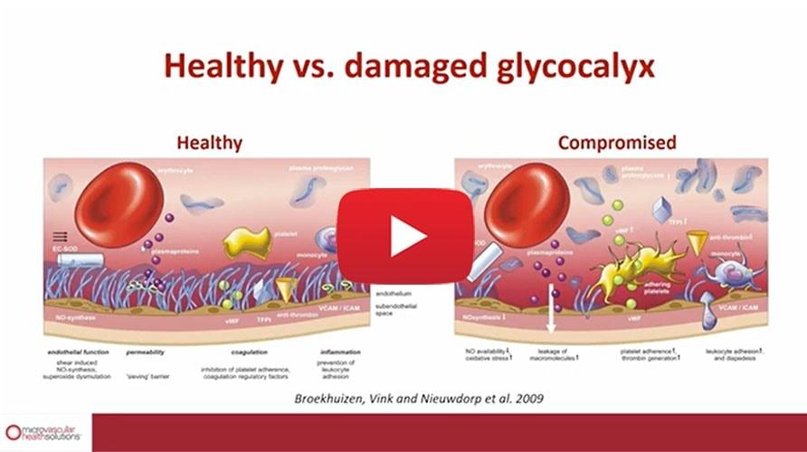 BBL-Healthy-Vs.-Damaged-Glycocalyx-Update-copy