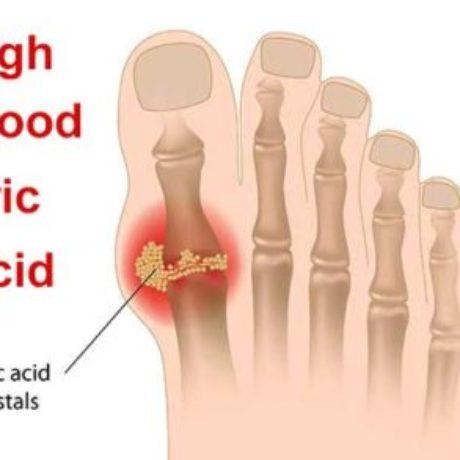 High Blood Uric Acid – Risks, Tests, Treatments