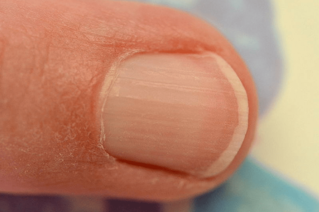 How to Strengthen Brittle & Splitting Nails Naturally with Vitamin E Oil