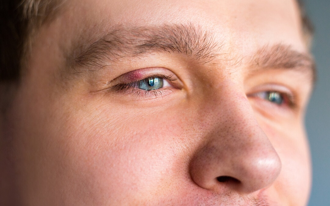 Have Styes? Here's Why They Come Back (and What You Can Do About It)