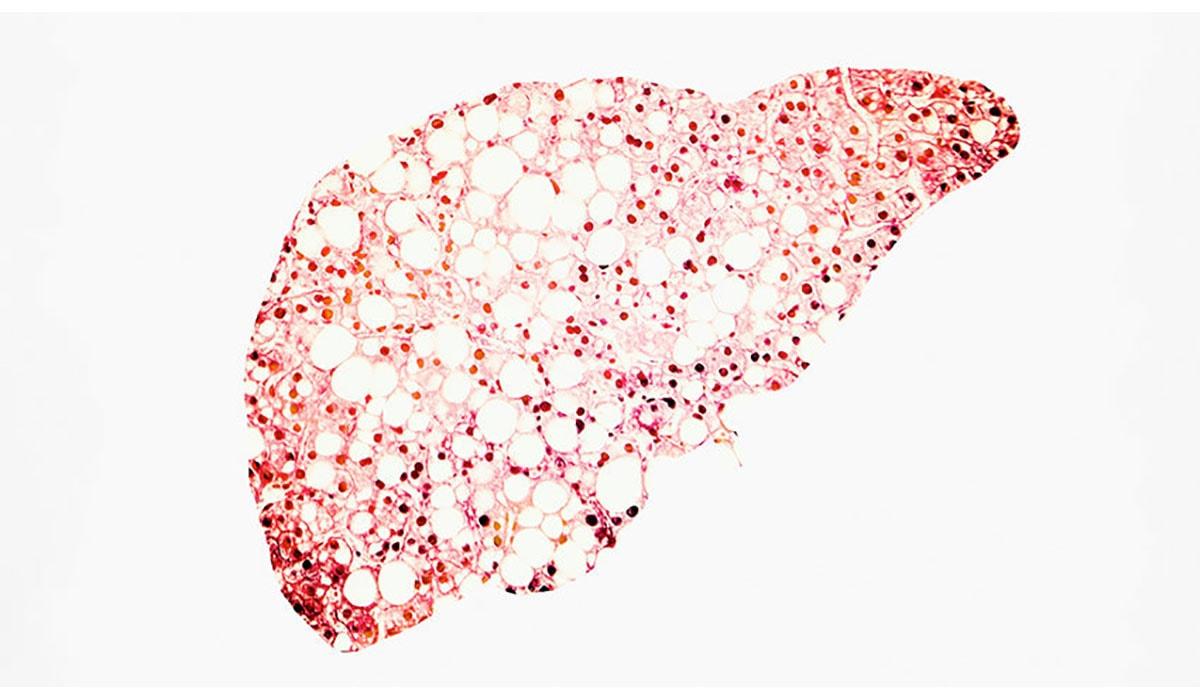 Fatty Liver Red Dye White Gatewayextension