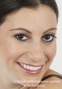 Prosthodontic Smile Improvement