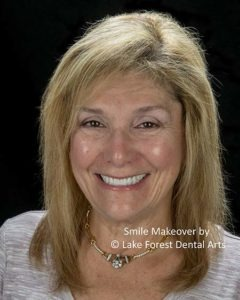 Smile Makeover process