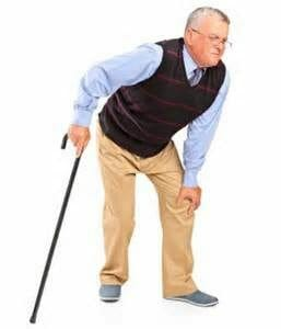 Arthritis pain image