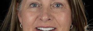 Are teeth implants worth it?