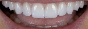 Conservative Dentistry