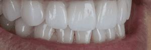 Caring for dental porcelain
