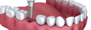 Are Dental Implants Better
