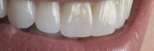 Front tooth enhancements