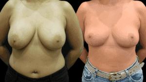 Capsulectomy Breast T Lift #5064 · Della Bennett MD · Rancho, Ca.